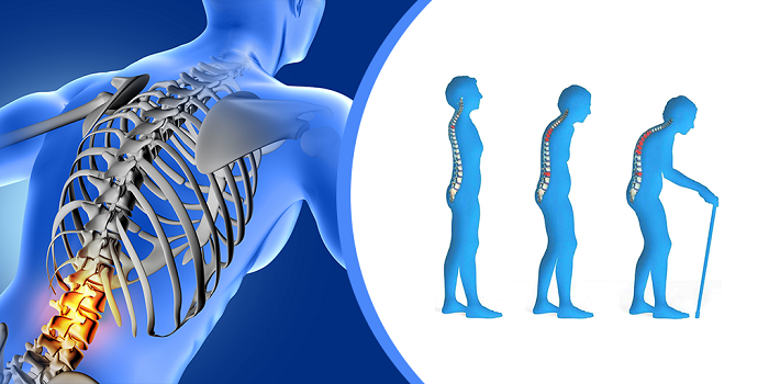 Osteoporosis - Medical Illustration Image.