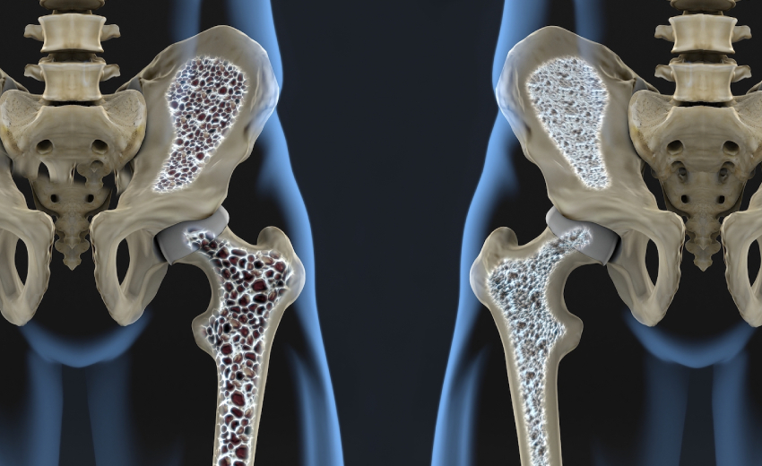 3D Illustration Of Bone Structure - Normal & Having Osteoporosis.